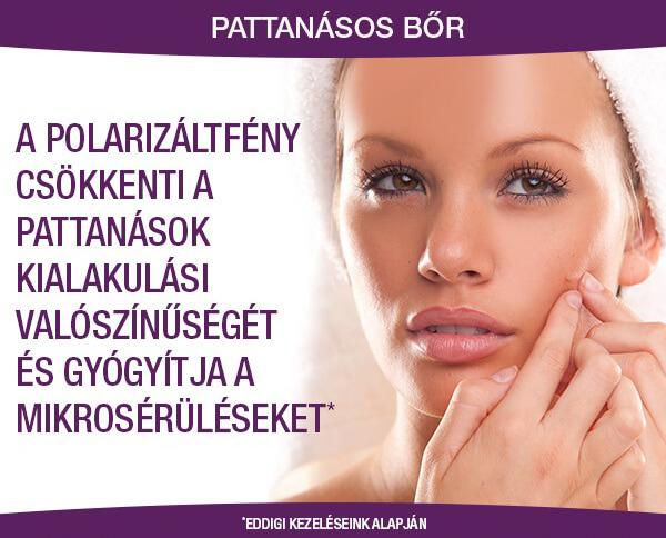 Polarizált fény kezelés pattanásos bőrre
